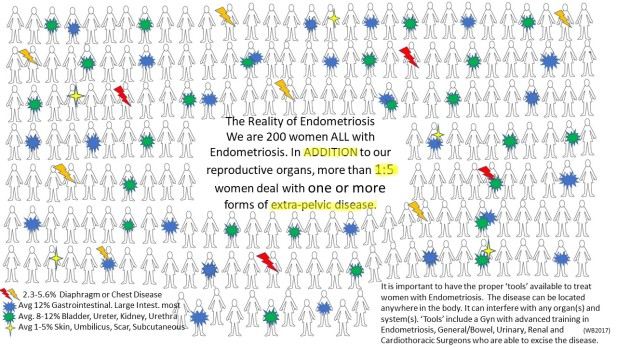 TheRealityofEndometriosis