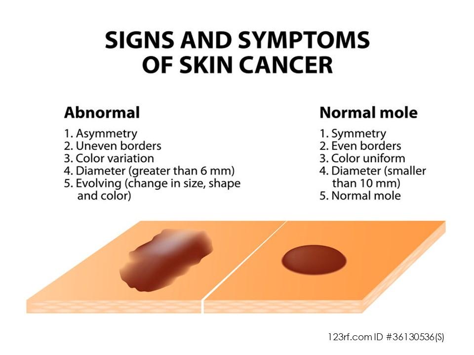 Endometriosis And Skin Cancer Extrapelvic Not Rare